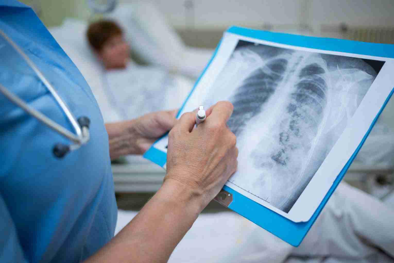 Атипичная пневмония в Казахстане: главный санврач Алматы объяснил ее происхождение